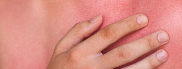 skinburn